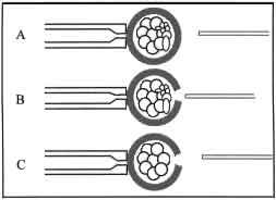 Éclosion assistée - Assisted Hatching (Nidation assistée)